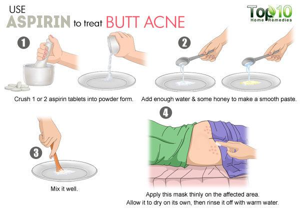 aspirin for butt acne