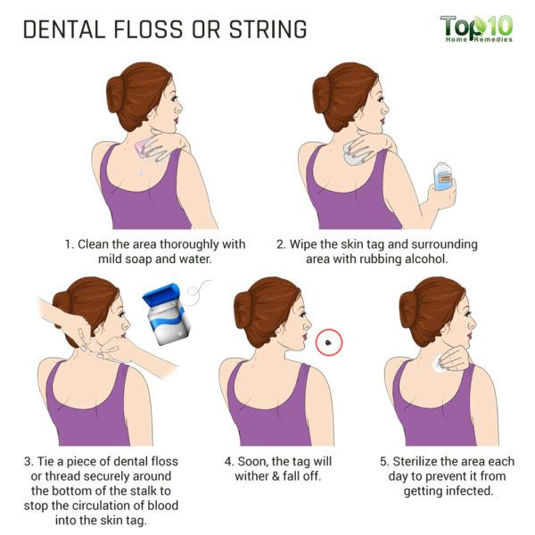 use dental floss to remove skin tag on neck
