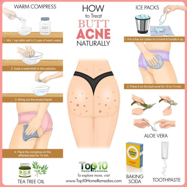 how to treat butt acne