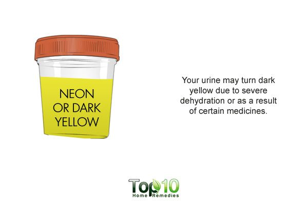 neon colored urine indicates dehydration