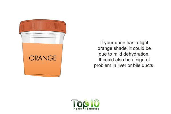 orange shade urine dehydration