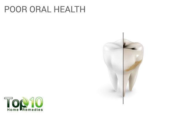 Poor oral health due to lack of self-care is a physical sign of depression