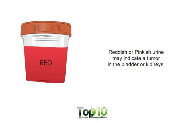 reddish or pinkish urine due to diet