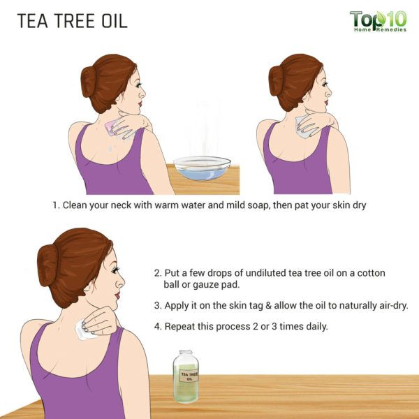 tea tree oil to kill off skin tag neck