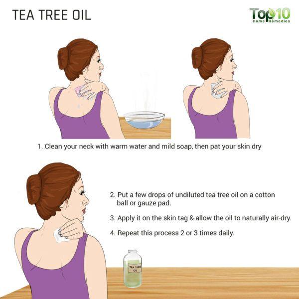 tea tree oil to kill off skin tag neck