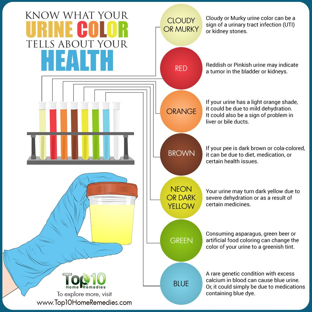Know Urine Color Tells Health on kidney stones symptoms