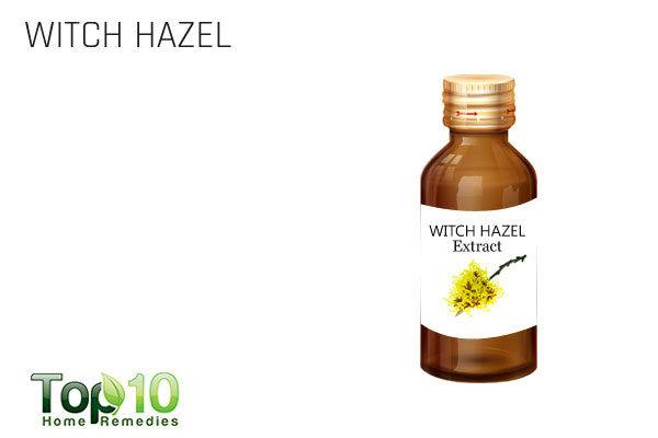 witch hazel for itchy eyes