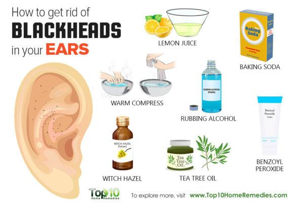 how to get rid of blackheads out of ear