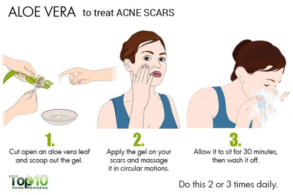 aloe vera to reduce acne scars
