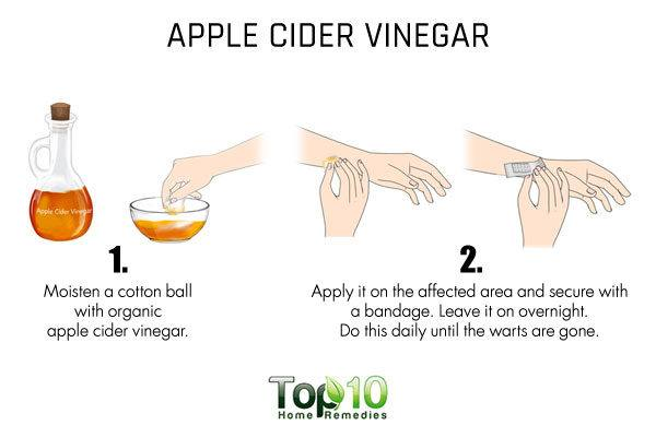 apple cider vinegar to dry up flat warts