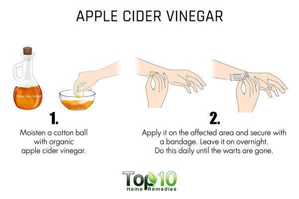apple cider vinegar to dry up flat warts