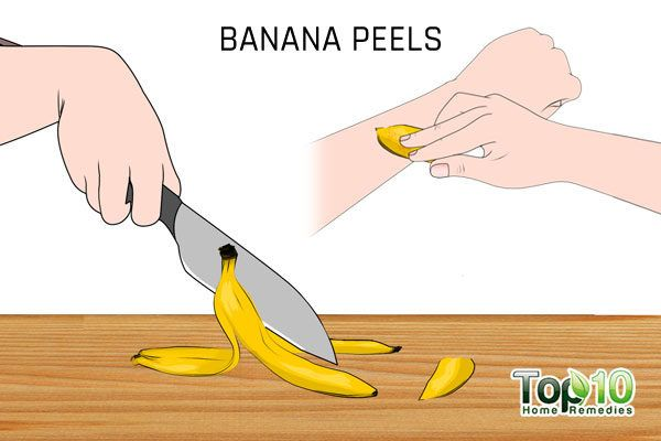 banana peels to treat flat warts