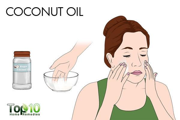 coconut oil fades acne scars