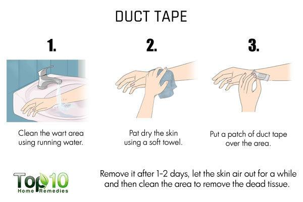 duct tape to treat flat warts