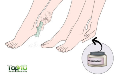 How to Get Rid of Peeling Skin on Your Feet
