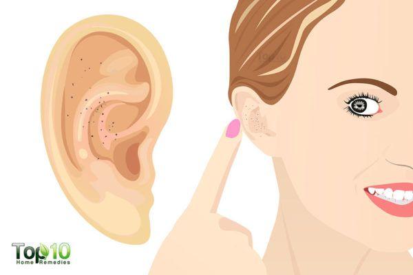 how to treat ear blackheads