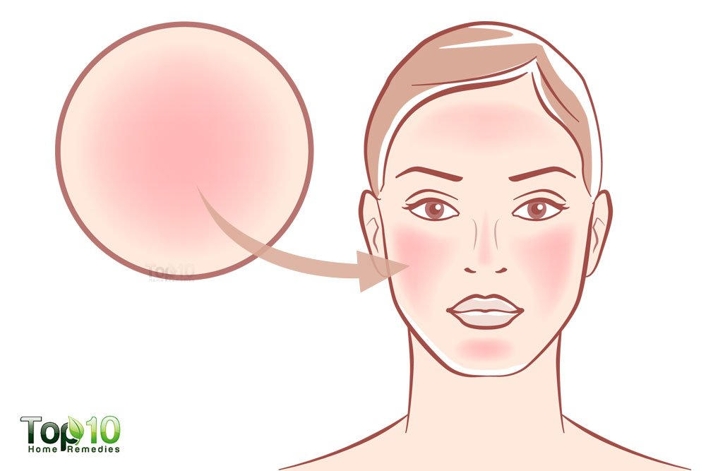 Home Remedies For Red Patches On Face