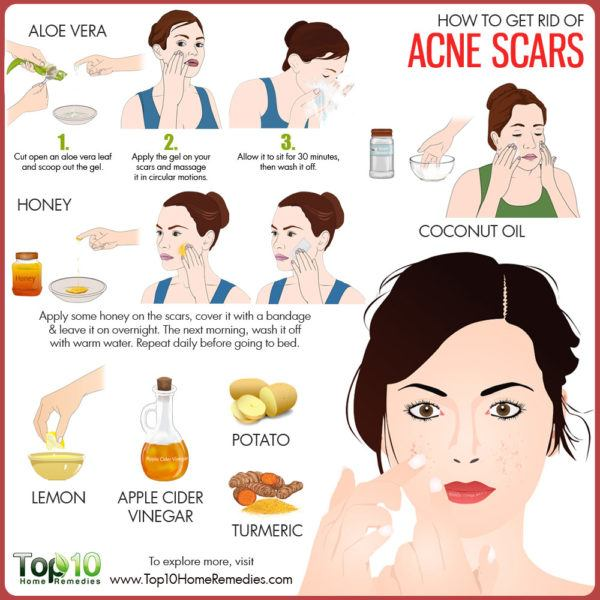 Natural Remedies To Get Rid Of Acne Scars