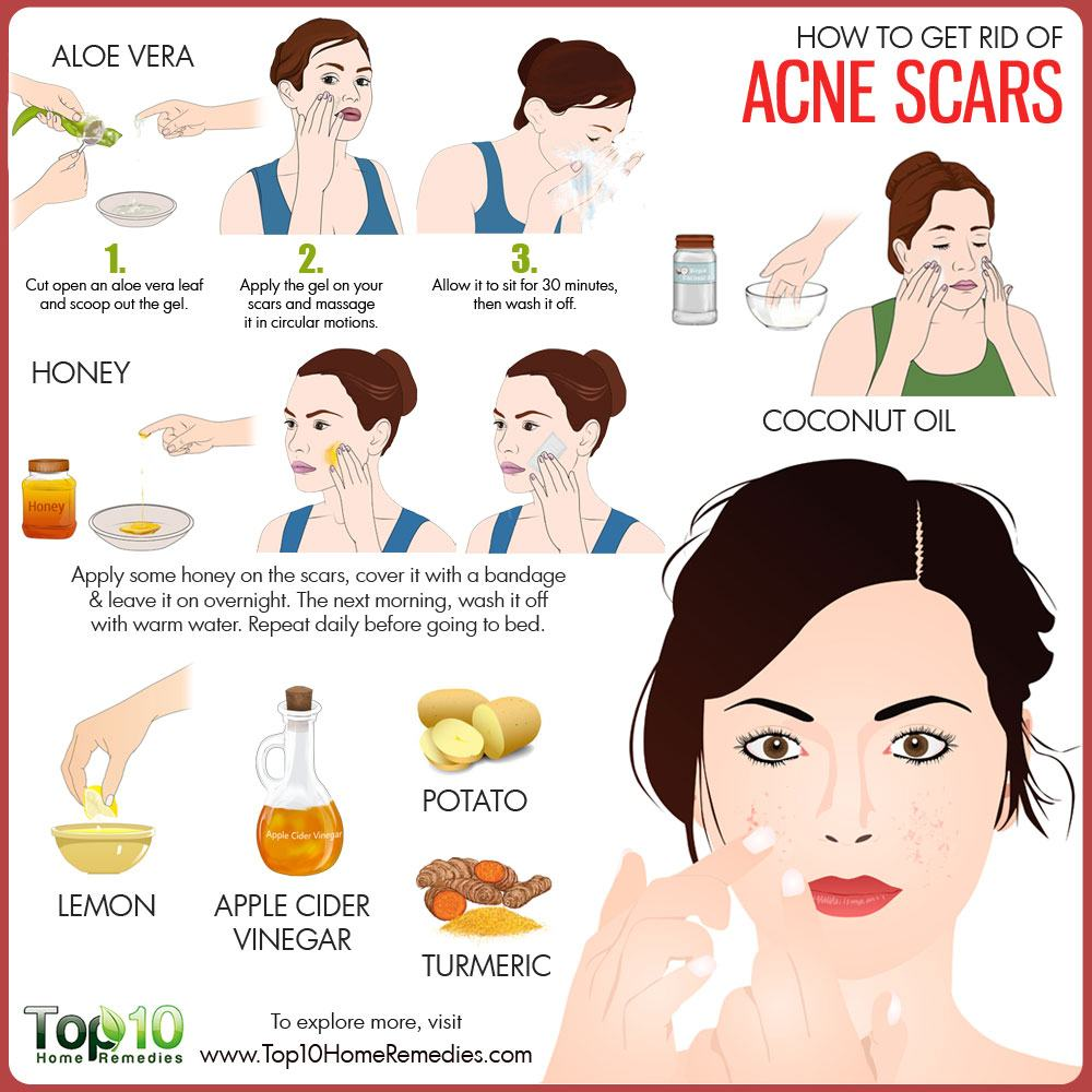 Natural Ways To Remove Red Acne Scars