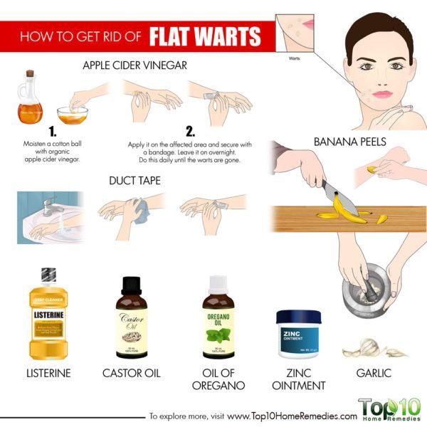 treat flat warts