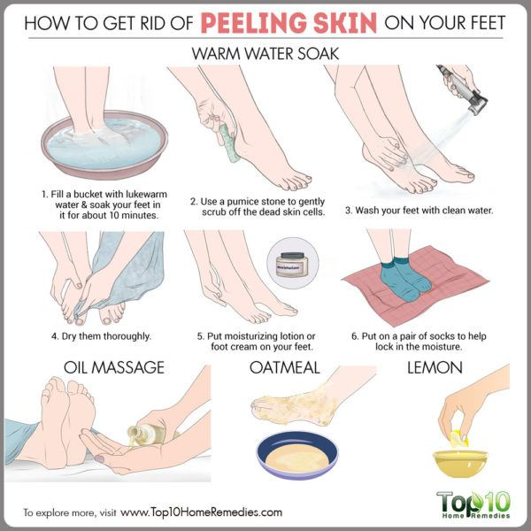 how to gid rid of peeling skin on feet