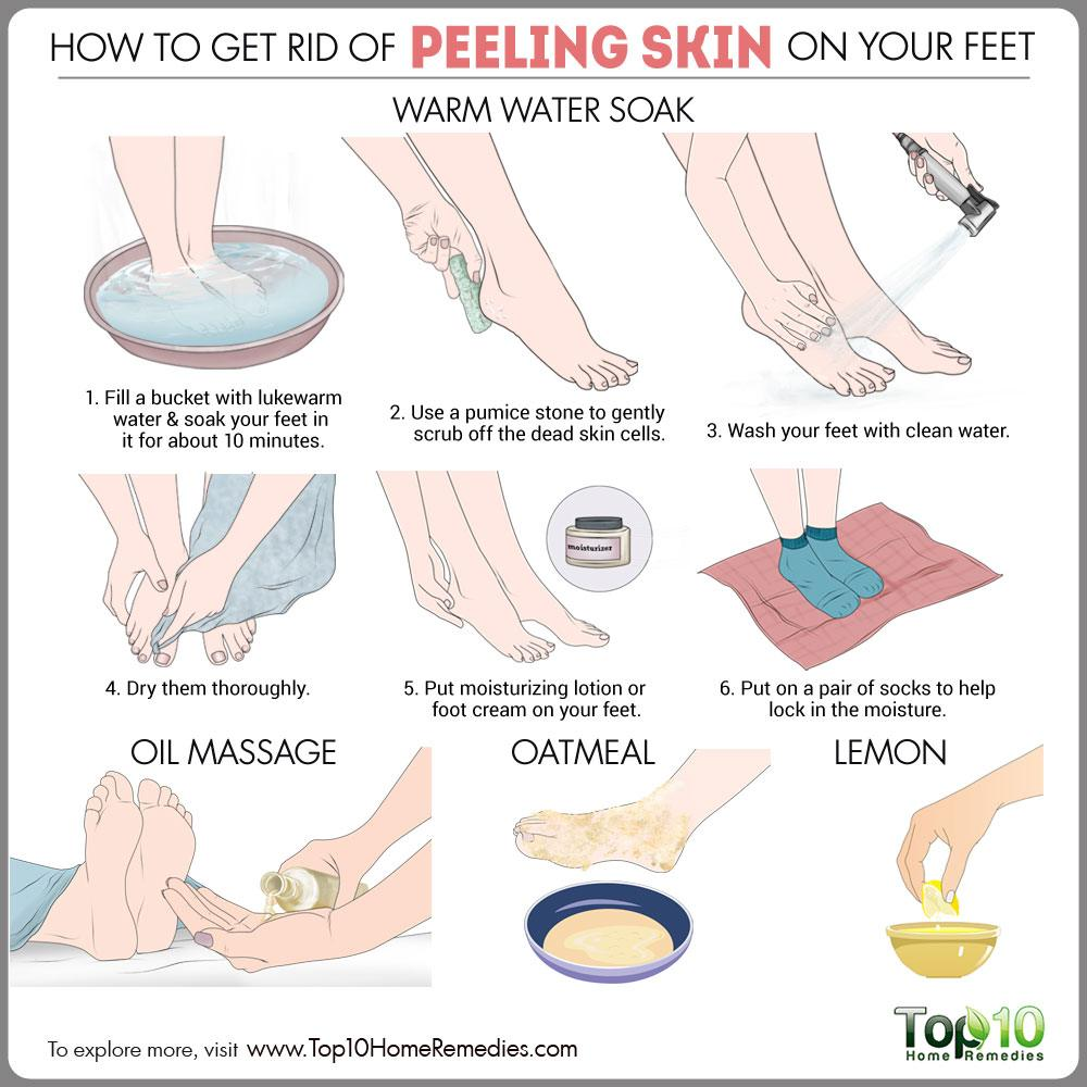 How to get rid of peeling skin on your feet top 10 home remedies how to gid rid of peeling skin on feet ccuart Image collections