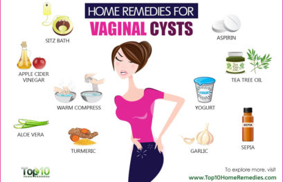 Home Remedies for Vaginal Cysts