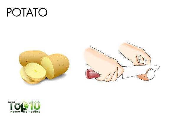 potato removes acne scars