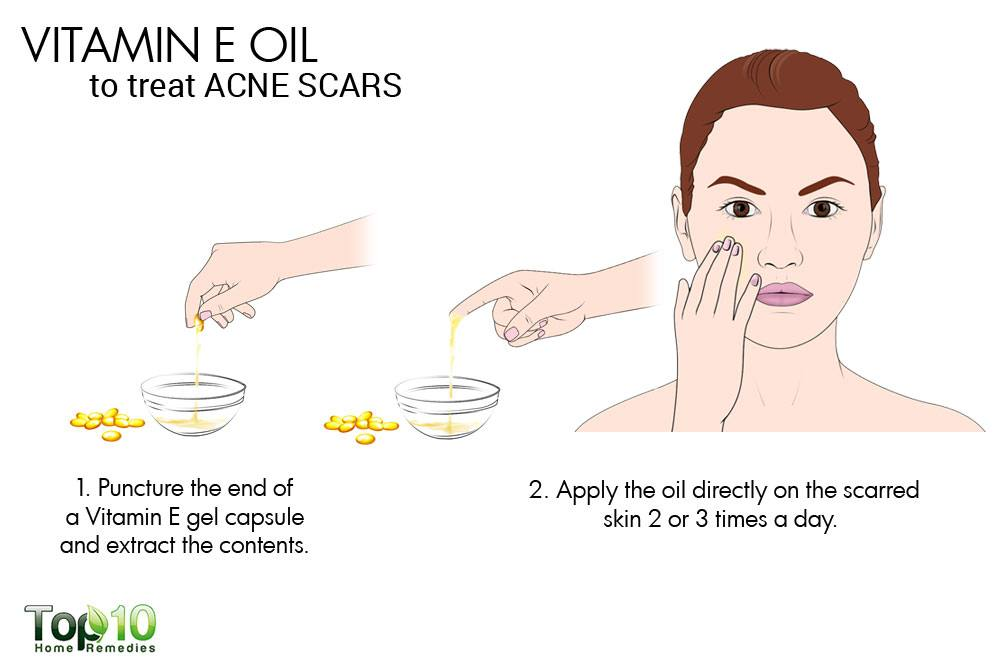 Vitamin e oil and acne
