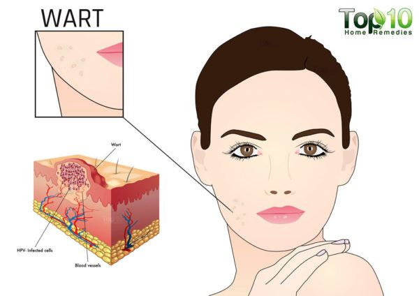 flat warts on face diagram