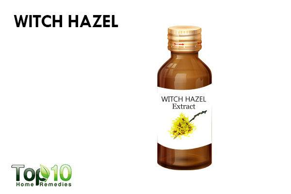 witch hazel to reduce facial redness