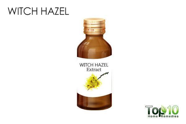 Witch hazel on blackheads