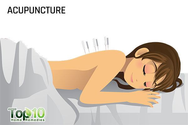 acupuncture therapy for scoliosis