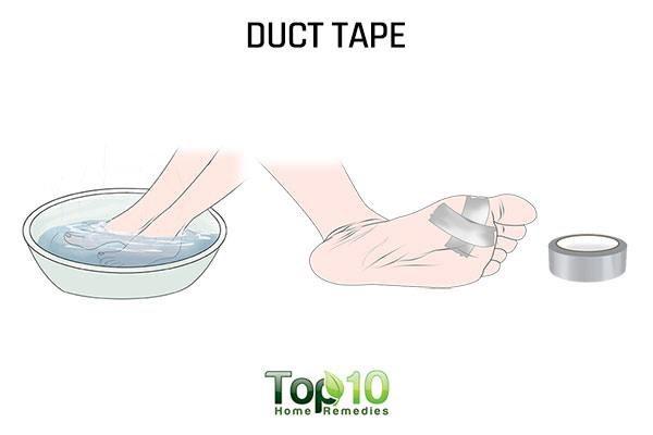 Plantar wart removal duct tape
