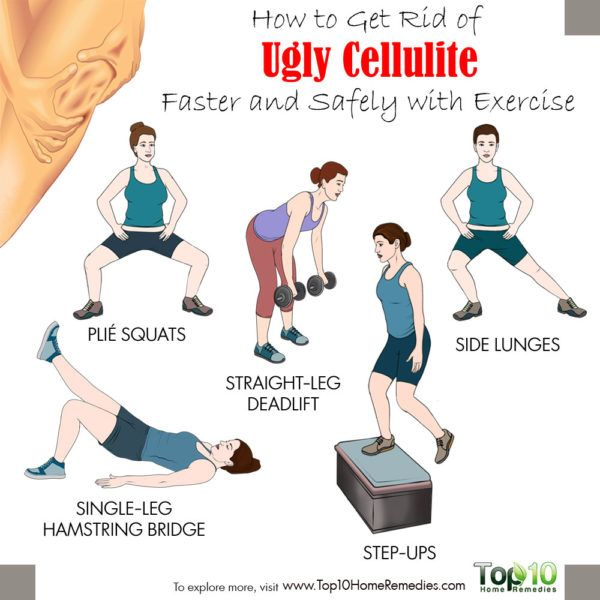 best exercises to treat cellulite
