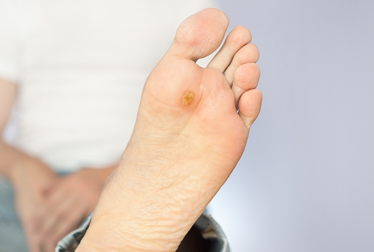 How To Get Rid Of Plantar Warts Top 10 Home Remedies