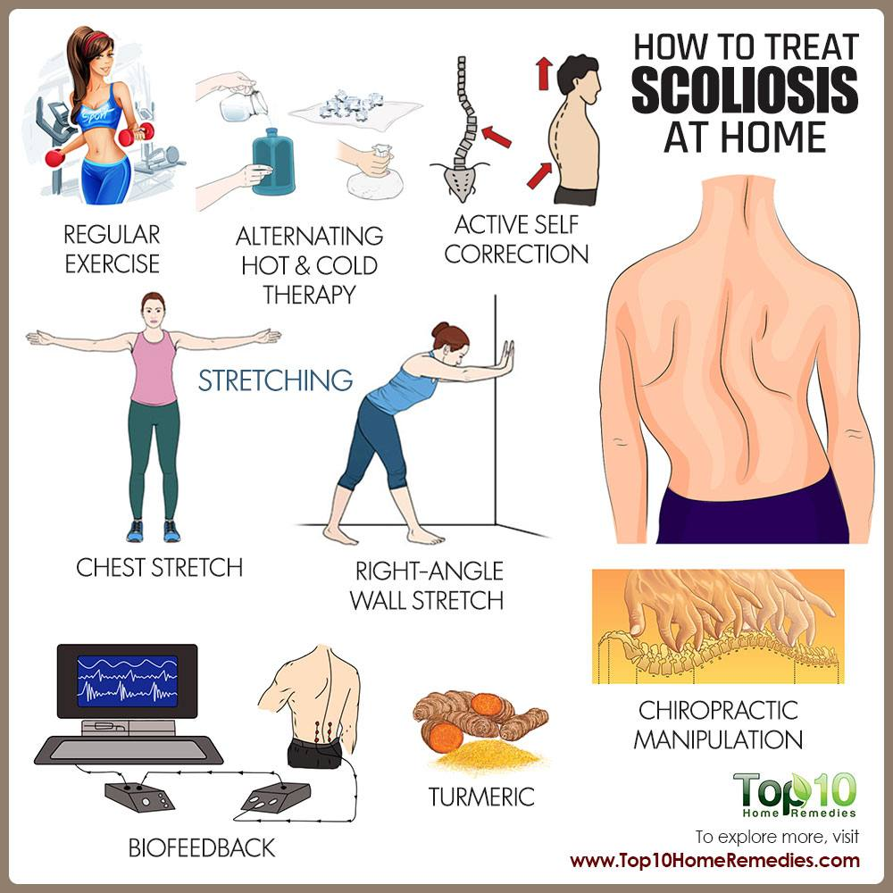 How to Deal with Scoliosis | Top 10 Home Remedies