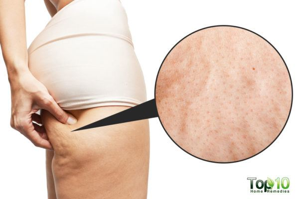 Banish Pangit Cellulite