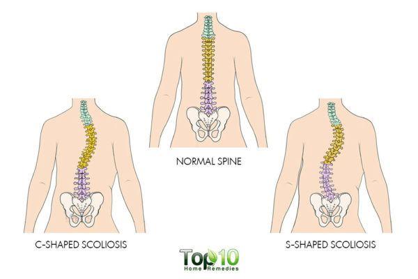 scoliosis diagram