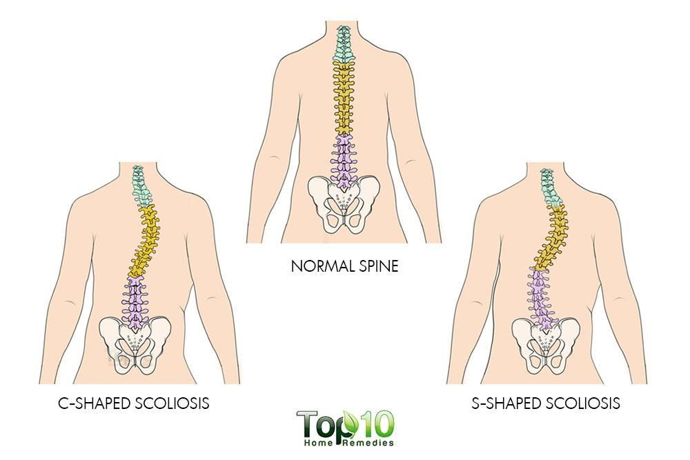 How To Deal With Scoliosis Top 10 Home Remedies