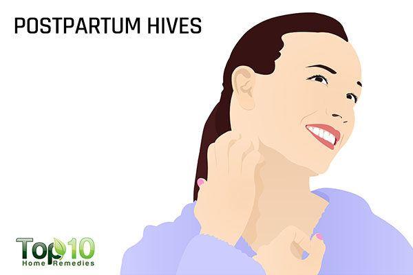 postpartum hives