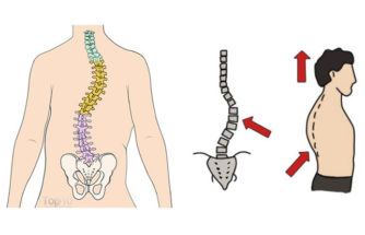 How to Deal with Scoliosis