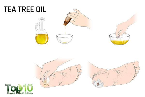 tea tree oil for plantar warts