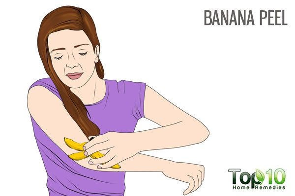 banana peel for dry scaly elbows