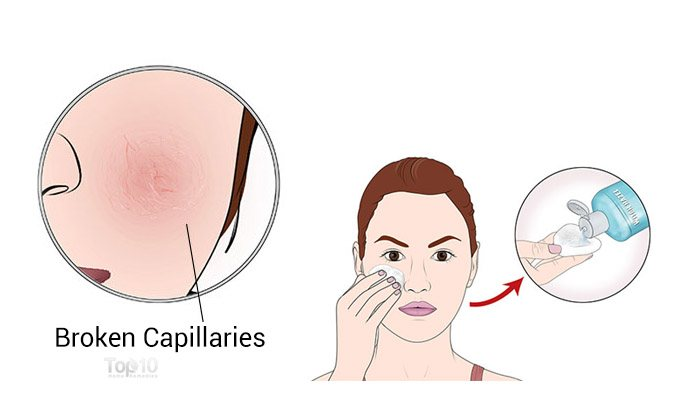 Very very rid of facial capillaries tits That hair