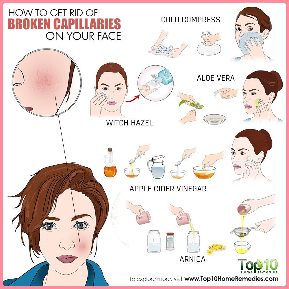 Rid of facial capillaries