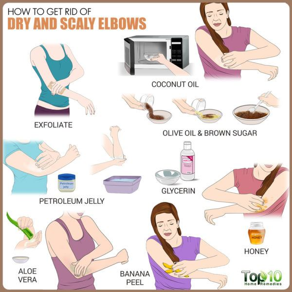 get rid of dry and scaly elbows