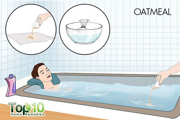 oatmeal bath to reduce postpartum hives
