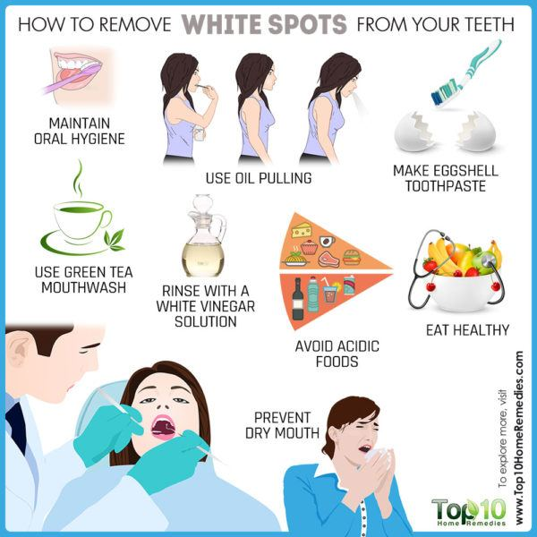 how to remove white spots on teeth