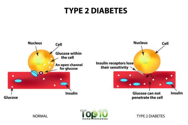 type 2 diabetes diagram
